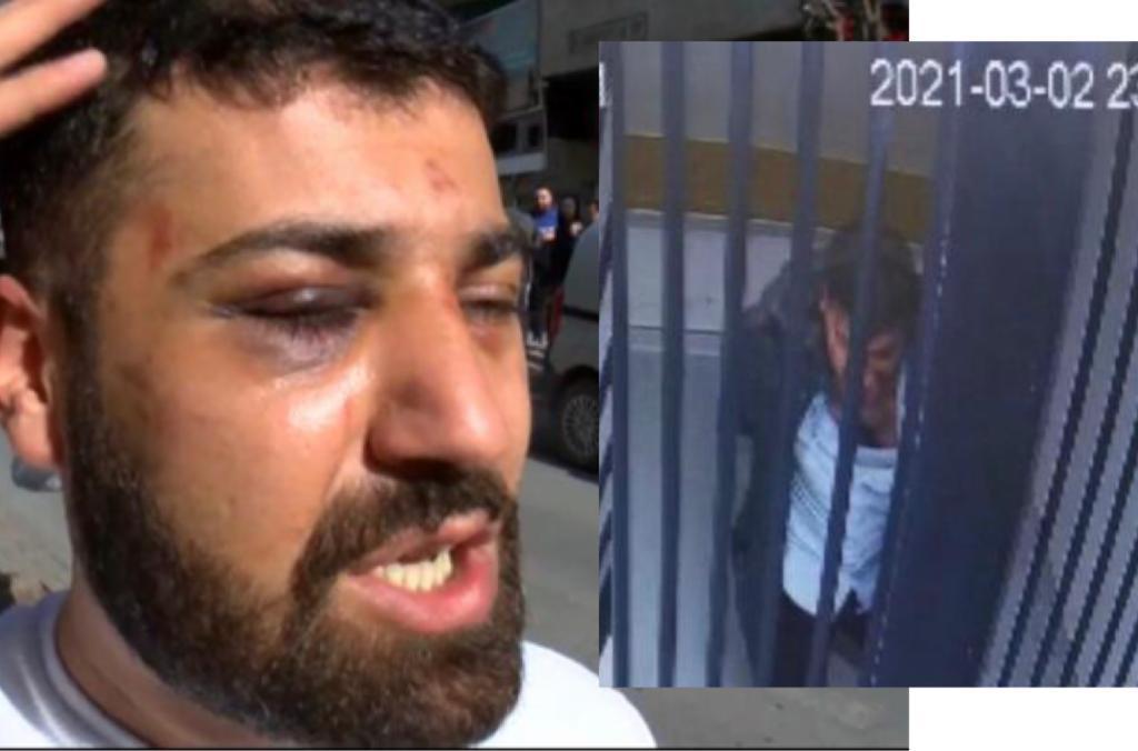 Polis şiddeti ve gazeteciliğin iki yüzü – Faruk Bildirici yazdı